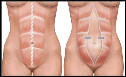 diastase abdominal blog mae na moda